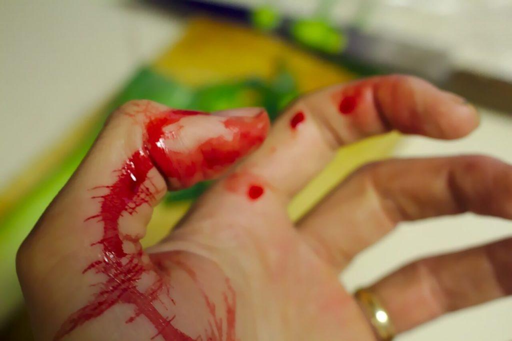 reclamafacil daños y lesiones